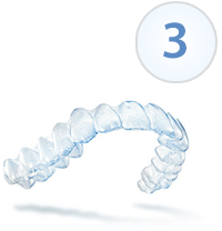 Invisalign Receive & Wear Your Custom Aligners