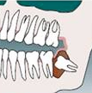 Wisdom Tooth Infection Tempe AZ